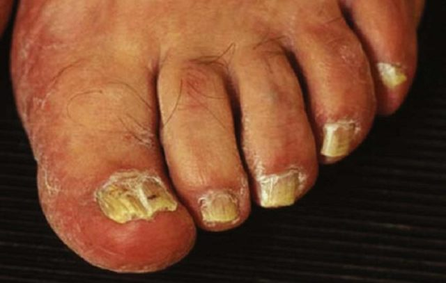 Грибок ногтей и ног