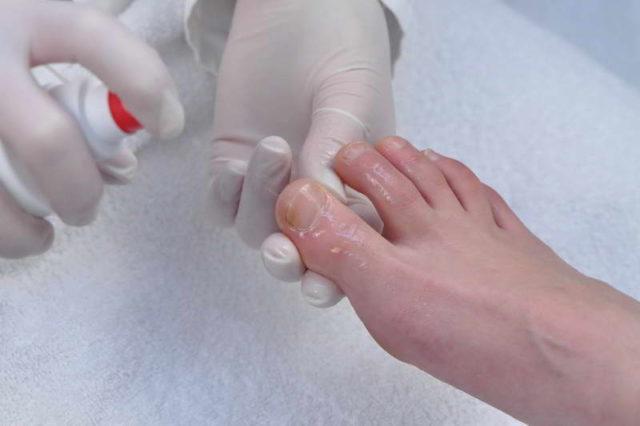Стадии развития грибка на ногтях ног 3