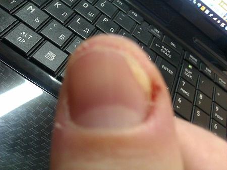 Болезнь ногтей