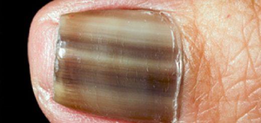грибок ногтей миниатюра