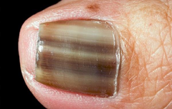 Грибки которые поражают ногтевую пластину