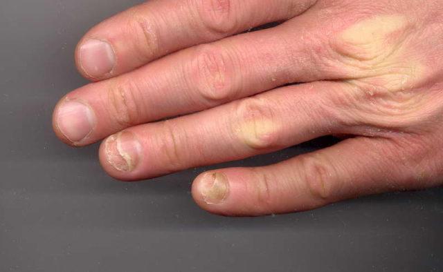 Стадии развития грибка на ногтях ног 2