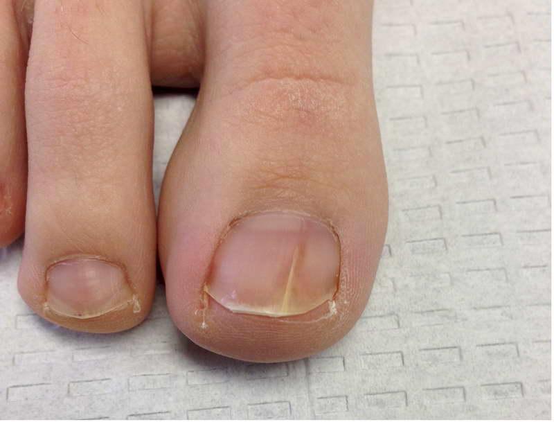 Как избавится народными средствами от грибка ногтей