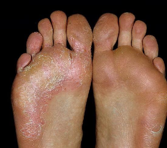Как уничтожить ногтевой грибок на ногах