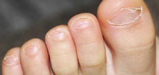 Чем лечить грибок на ногах у детей?