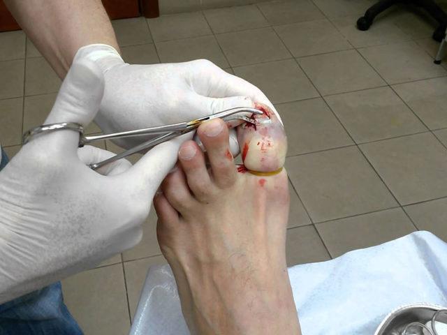 Хирургическое удаление ногтя
