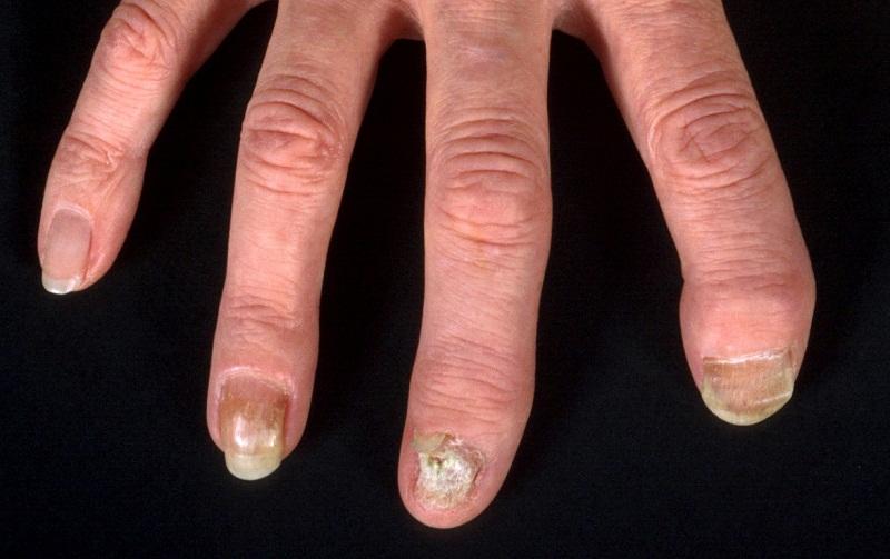 Какие препараты надо при грибке ногтя