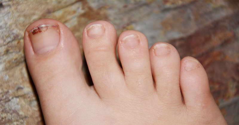 Грибок на ногте ног как его вылечить