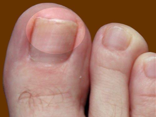 Стадии развития грибка на ногтях ног 1