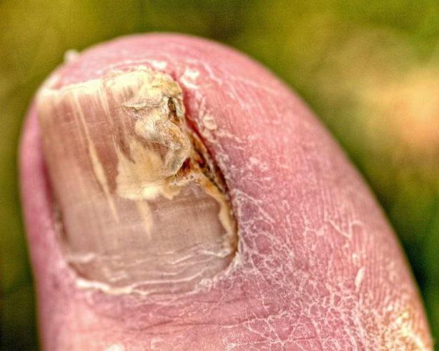 Народные средства от грибка ногтей на ногах