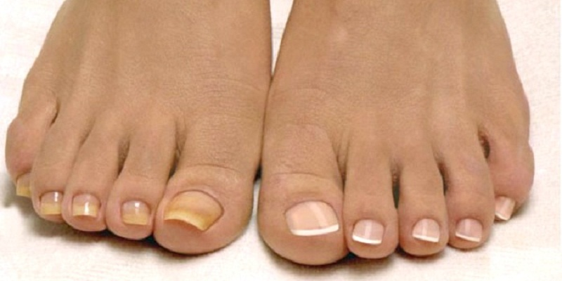 Грибок ногтей и кожи стопы фото