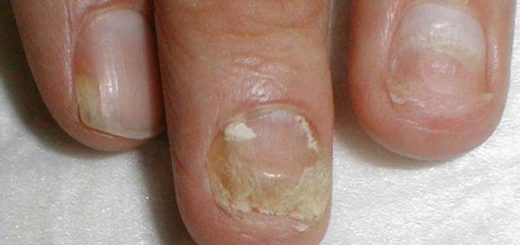 онихомикоз ногтей миниатюра