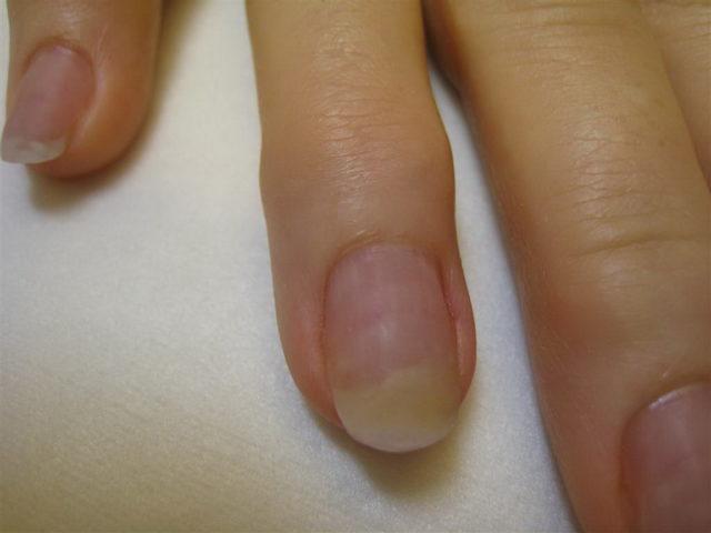 ранняя стадия онихомикоза ногтей