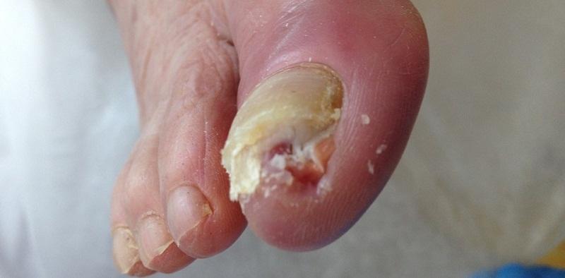 Псориаз ногтей на ногах и руках