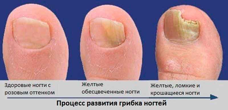 Как выглядит ноготь при лечении