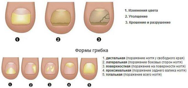 стадии развития грибка ногтей
