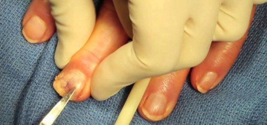 Удаление ногтей пораженных грибком — самые эффективные методы