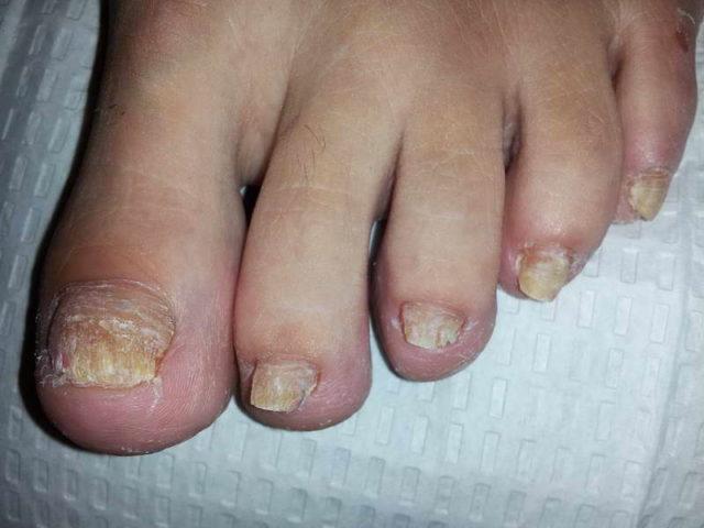 Запущенный грибок ногтей