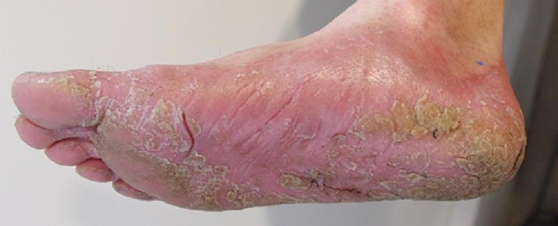 Грибок ногтей на ногах лечить солью