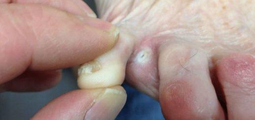 Эффективное лечение грибка между пальцев ног