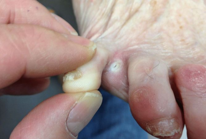 Искривлены пальцы на ногах грибком