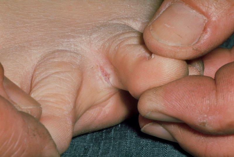 Грибок между пальцами на ноге