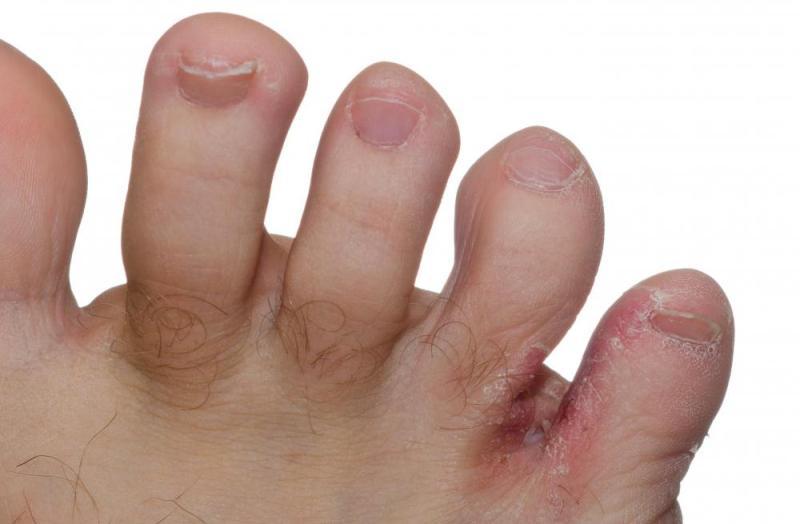 Лечение грибка между пальцами ног лечение в домашних условиях thumbnail
