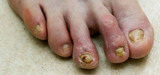 Как вылечить грибок на ногах: аптечные и народные средства