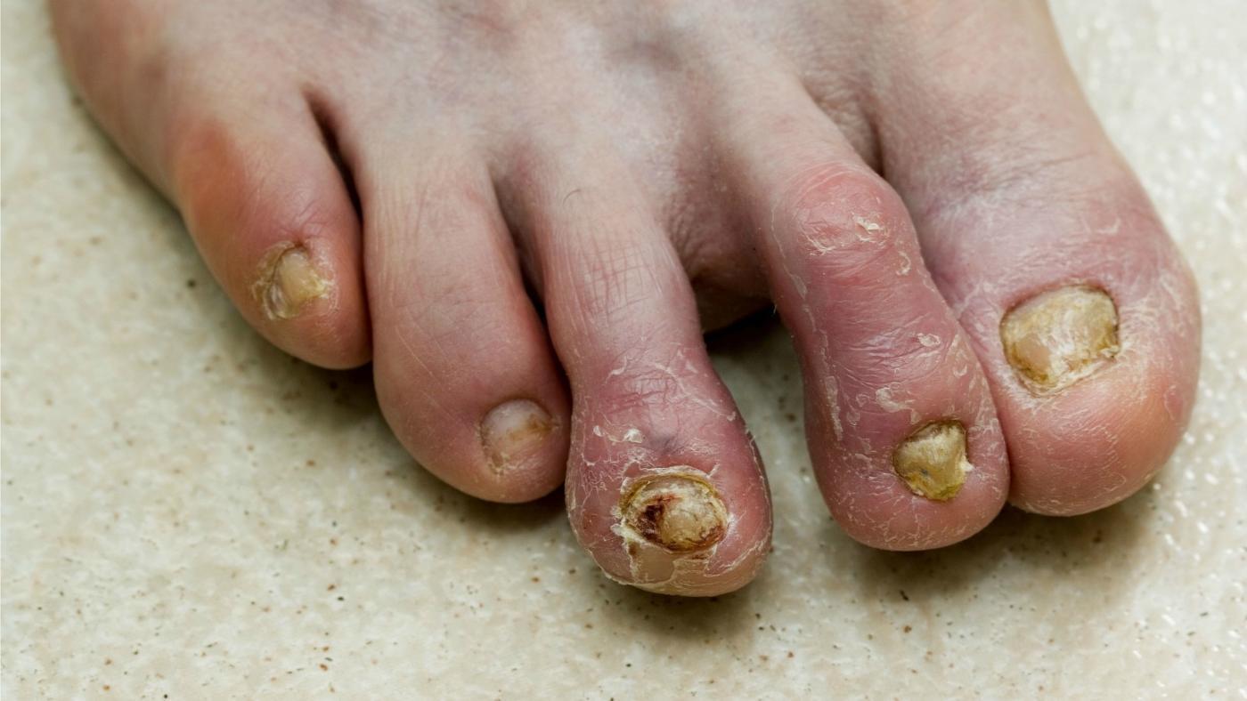Грибок на коже голени ног фото