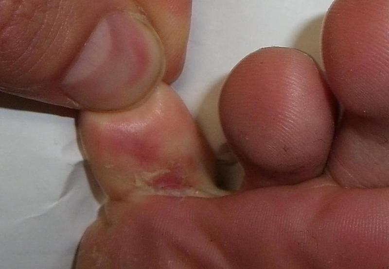Микоз на ноге