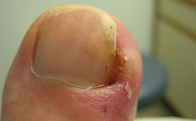 Опух палец на ноге и болит может посоветуете что сделать