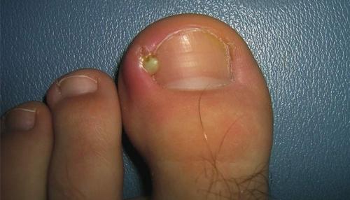 Панариций на пальце ноги: лечение хирургическое, антибиотиками и мазью от нарыва на большом пальце ноги
