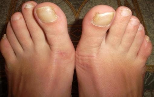 О чем говорит грибок на ногтях ног