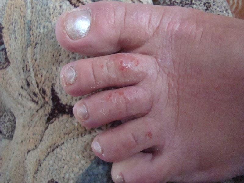 Опрелость на пальцах ног
