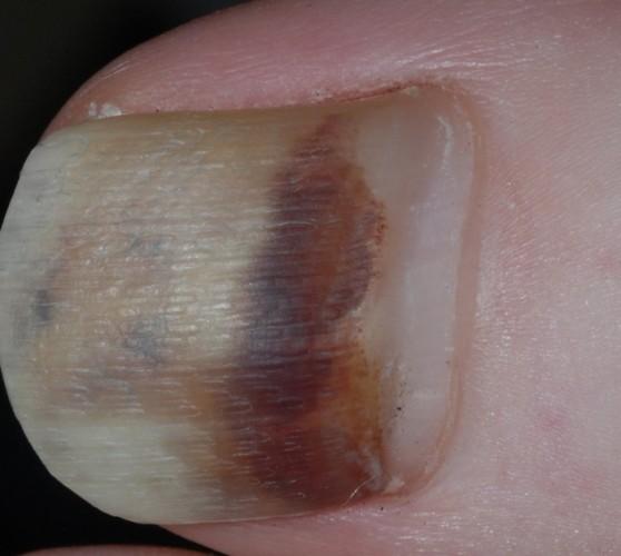 Чернеет ноготь от грибка