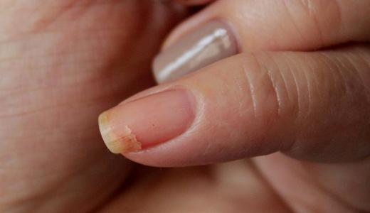 Трещина вдоль ногтя на руке