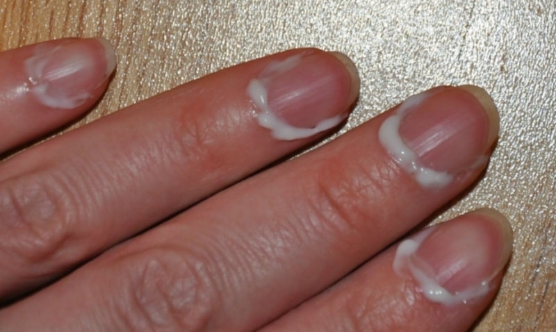 Трещина на ногтевой пластине