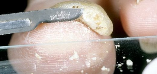 Анализы на грибок ногтей