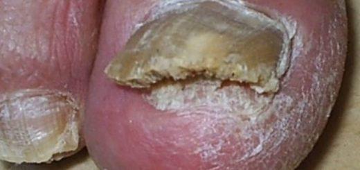 Лечение грибка ногтя большого пальца
