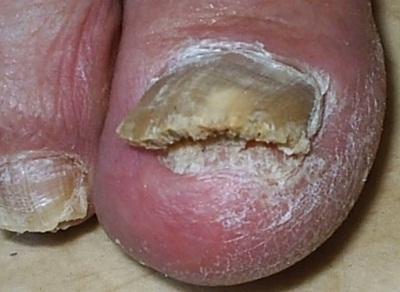 Грибок ногтя на большом пальце ноги: лечение, симптомы и признаки