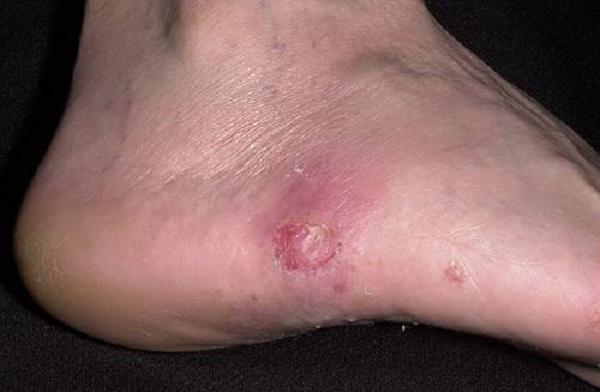 Волдыри на ступнях ног: причины возникновения и методы лечения