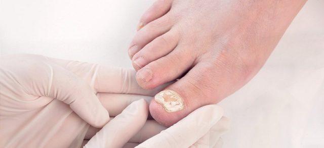 Капли от грибка ногтей