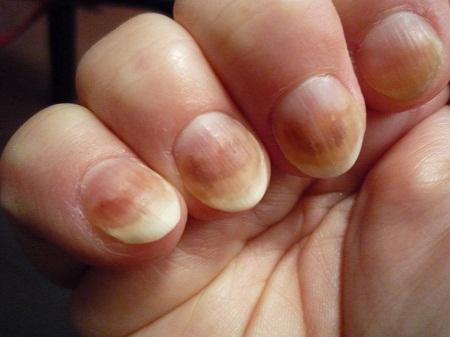 Грибок ладоней фото симптомы лечение