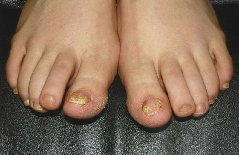Как спасти ногти от грибка