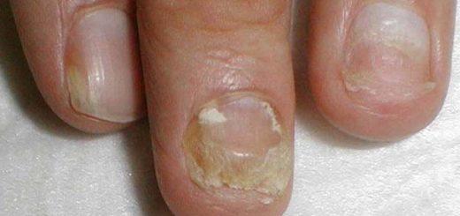 Онихомикоз ногтей — что это такое?
