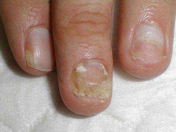 Как лечить гипертрофический онихомикоз на ногтях