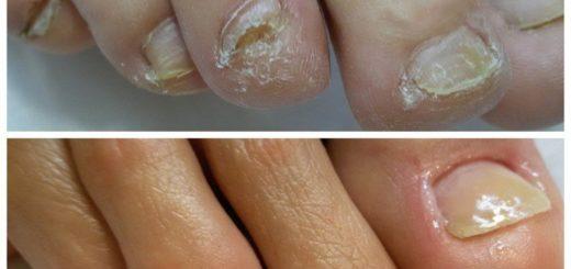 30 способов восстановить ногти после грибка