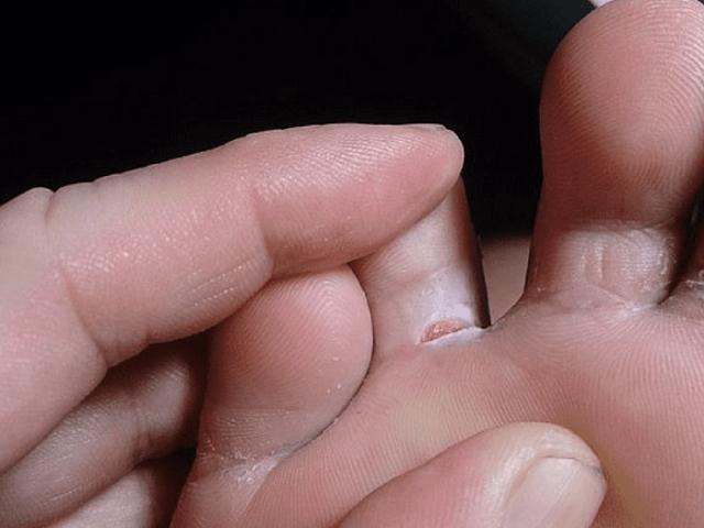 Трещины между пальцев