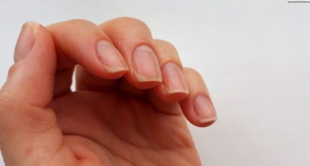 Ногти после грибка