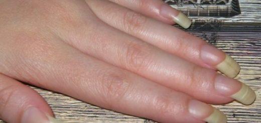Почему загибаются ногти на пальцах рук